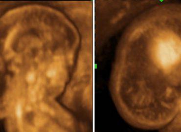 Beneficiile utilizării ecografiei 3D în diagnosticul prenatal al malformaţiilor fetale