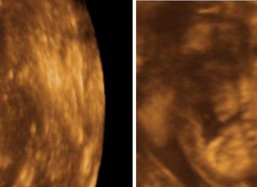 Hidropsul fetal – diagnosticul prin ecografie 3D